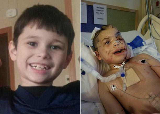 german shepherd attacked boy